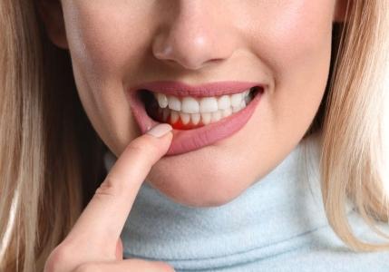 Zahnfleischentzündung - Was hilft?